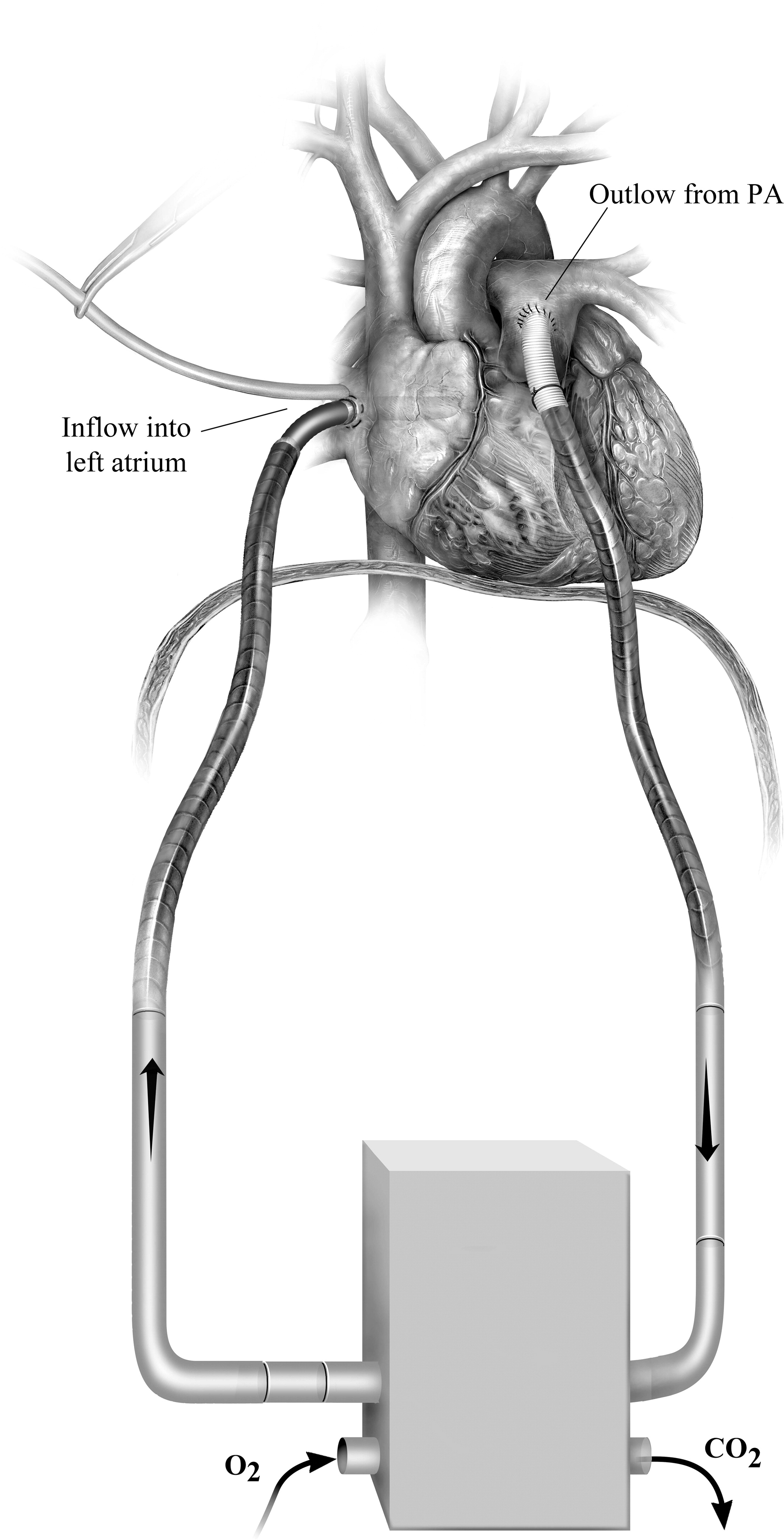cardiac and thoracic procedures